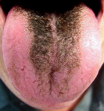 white hairy tounge