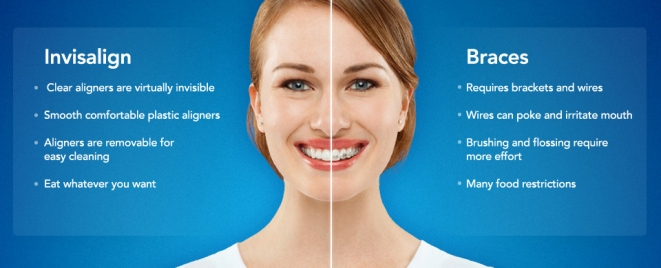 Brampton Dentists, Top Dentist in Brampton, Invisalign Braces, Celebrities with Invisalign Braces, Dentists in Brampton Ontario, Cosmetic Dentistry,