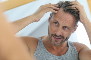 Hair Loss, Top Brampton Hair Salons, Best Hair Salon in Brampton, Brampton Hair Salons, Hair Care, Hair Loss Tips,